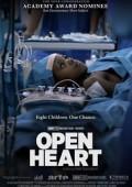 Otwarte serce